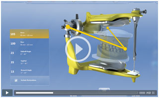 View CEREC Related Videos