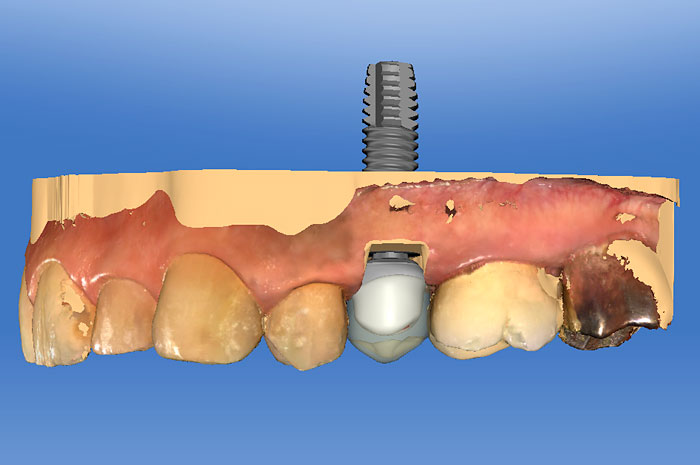Provisionalizing and Restoring Implants with CEREC (CL3)