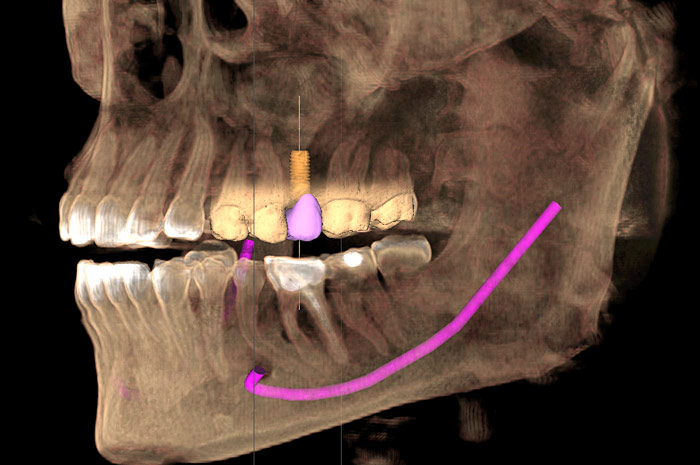 Level 6A: CEREC and Cone Beam Integration in Surgical Implant Dentistry