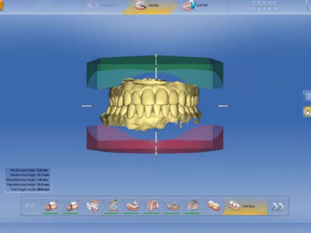CEREC Ortho 1.2.1 - 4. Exporting