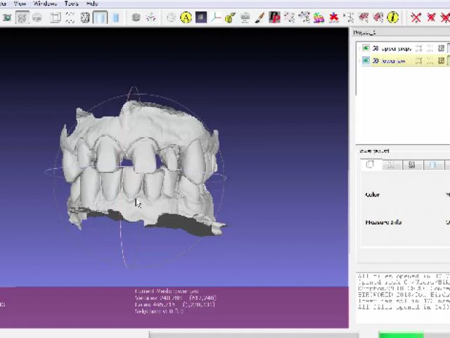 11. Biocopy Merge Technique - Live Case Merging of .stl files in Meshlab