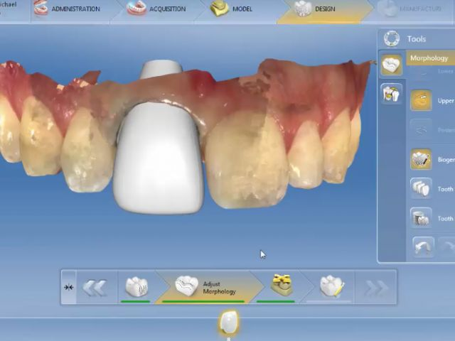 4.6 Design Phase - Biojaw Tool - Single Anterior