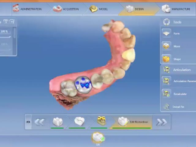 Virtual Articulator Occlusal Compass