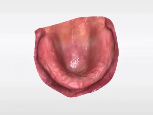 11. CEREC Primescan Edentulous Ridge and Denture Applications
