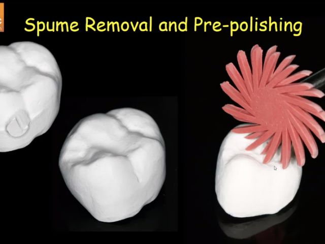 13. Chairside Zirconia - PrePolish Before Sintering