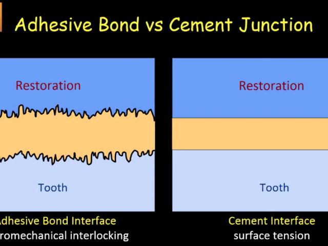 16. Chairside Zirconia - Adhesive Or Conventional Cementation Zirconia