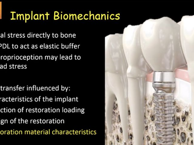 4. Implant Chairside Materials - Ceramic vs Resin-based