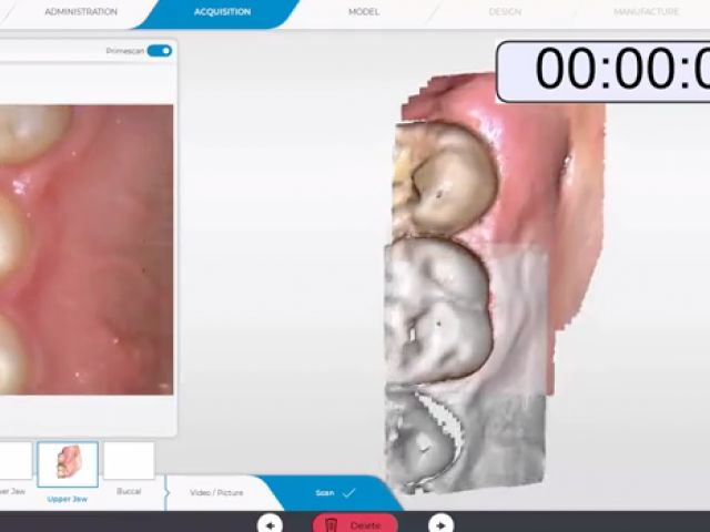 CEREC Primescan Full Upper Arch Scan Part 2 with Palate