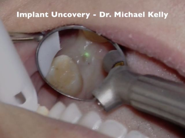 Solea Implant Uncovery #14 - Dr. Michael Kelly