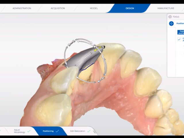 29. Design - Positioning (Biojaw) Single Anterior