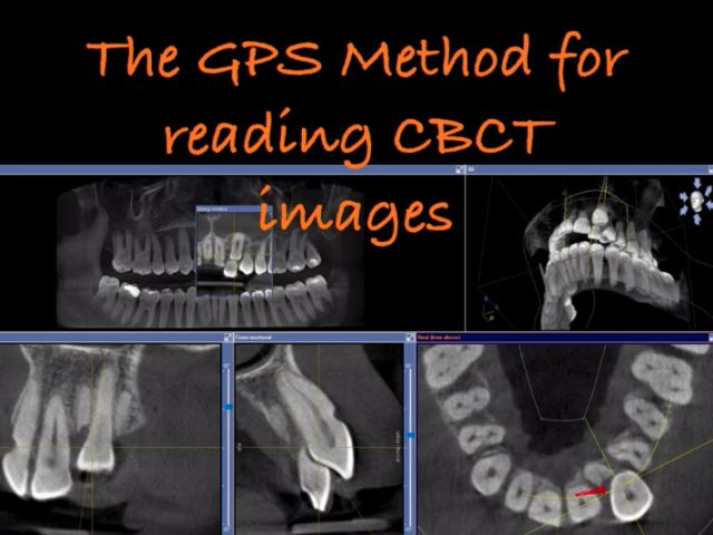 Introduction To The GPS Method Of Reading CBCT Images