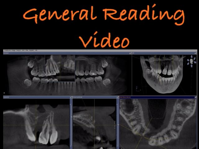 General CBCT Reading With The GPS Method