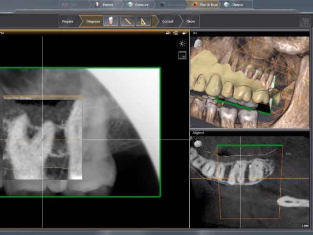 3. SICAT Endo - Diagnosis Phase - Aligning 2D Radiograph with CBCT Scan