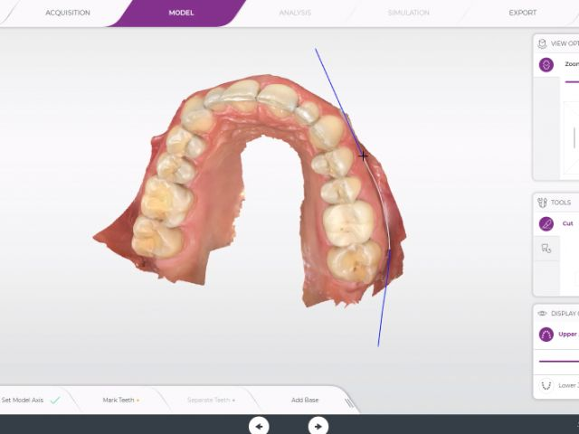 CEREC Ortho 2.0 - 10. Closed Geometry Export for Printing