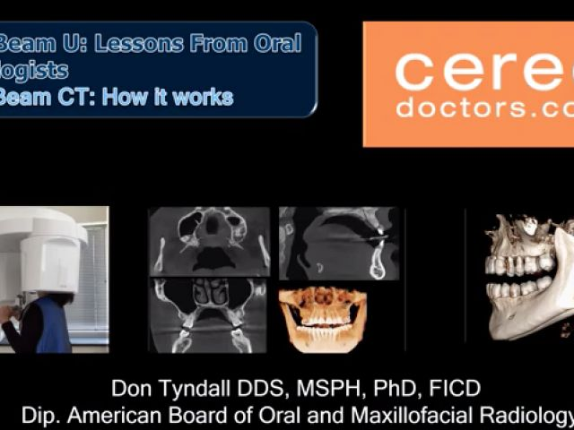 How CBCT Works
