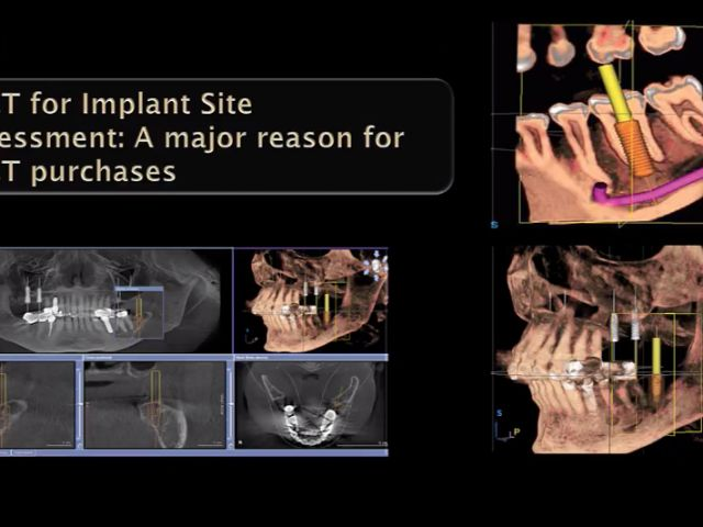 Applications for CBCT - Implant Treatment Planning