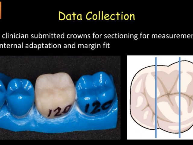 4. PBN Crown Occlusal Spacer Setting Study - Crown Spacer Data