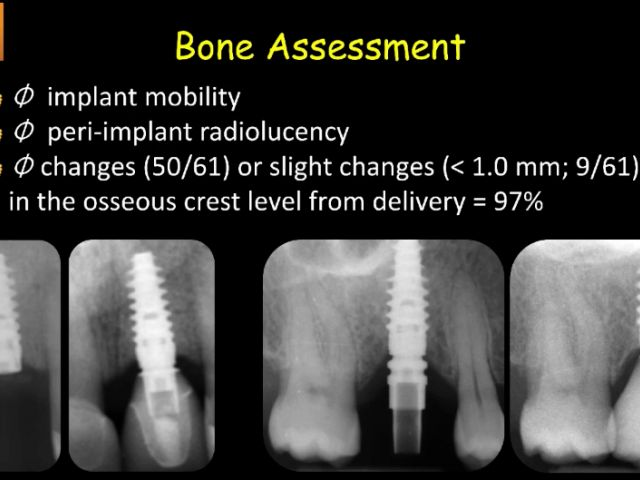 Clinical Evaluation of Chairside CAD/CAM Implant Restorations - Assessing Tissue