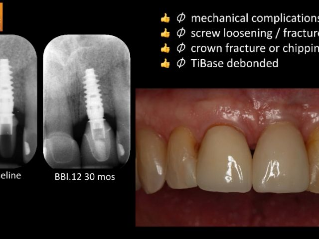 Clinical Evaluation of Chairside CAD/CAM Implant Restorations - Conclusions
