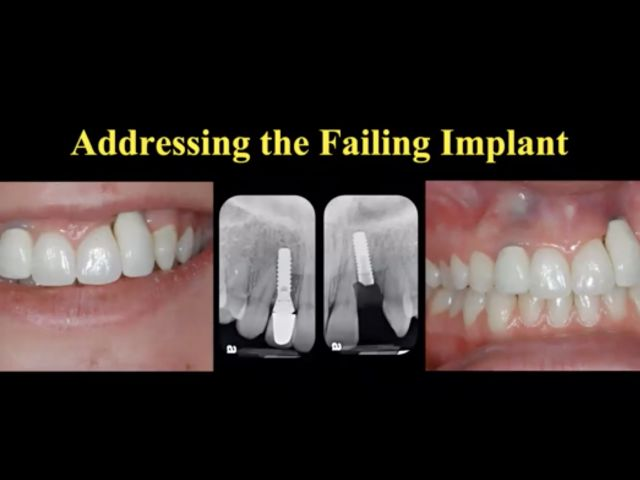 Addressing the Failing Implant