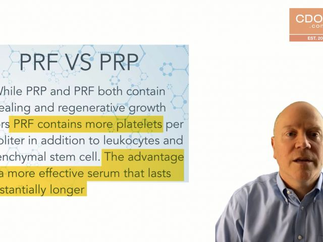 Tip of the Day - Introduction to PRF