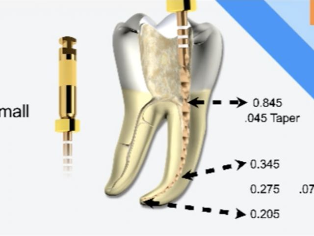 Endodontic Shaping - Reciprocation Technique