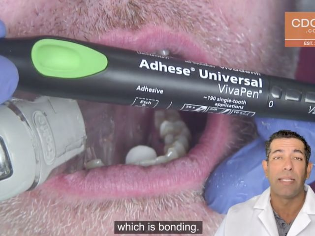 Tip of the Day - Adhese Universal