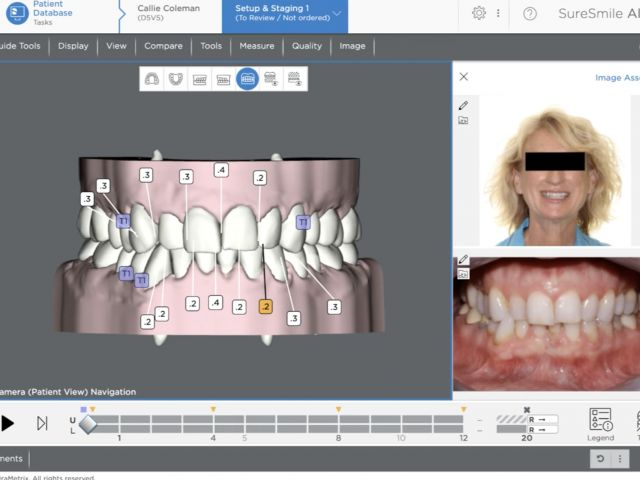 IPR - SureSmile Software Navigation