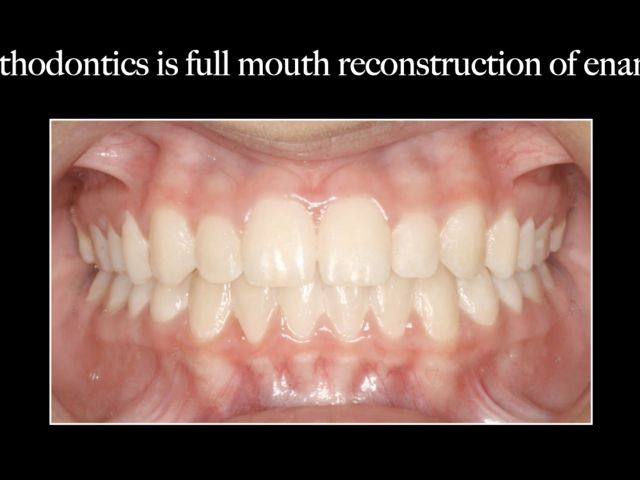 Clear Aligner Limitations and Tooth Movement