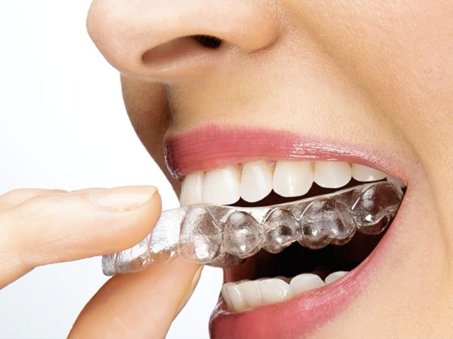 Orthodontic and SureSmile Value Proposition