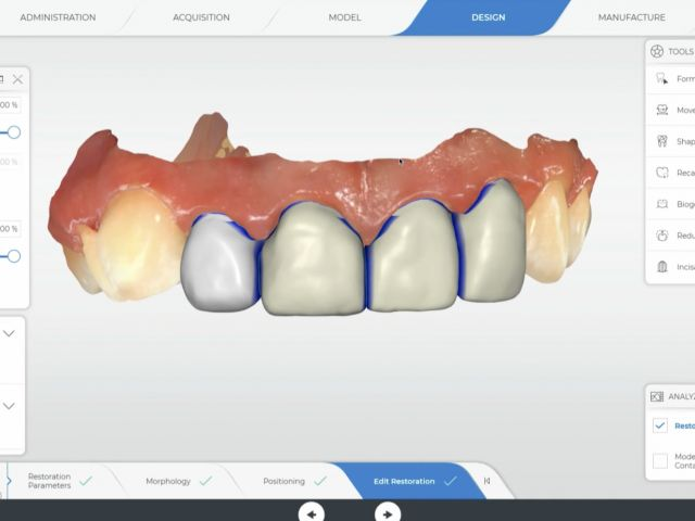 Anterior 4 Tooth Design Help