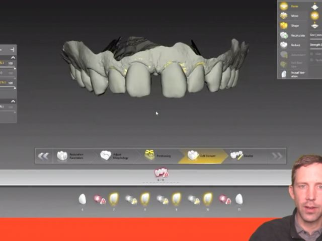 Tip of the Day - Digital Ortho Wax Ups