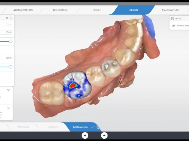 Possible Occlusal Reduction Issue