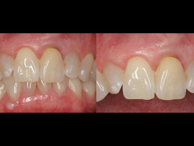 Digital Implant Dentistry Strategies to Treat the Hopeless Tooth Esthetic Zone - Part 2