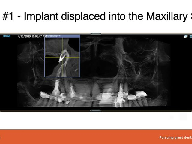 Implant Complications -  Sinus Complications