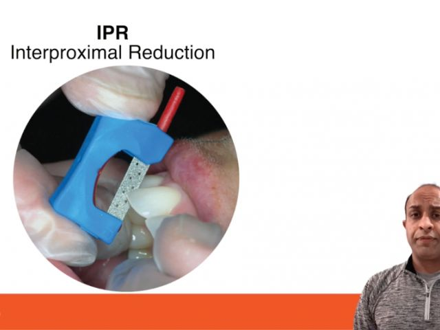Tip of the Day - Orthodontic IPR