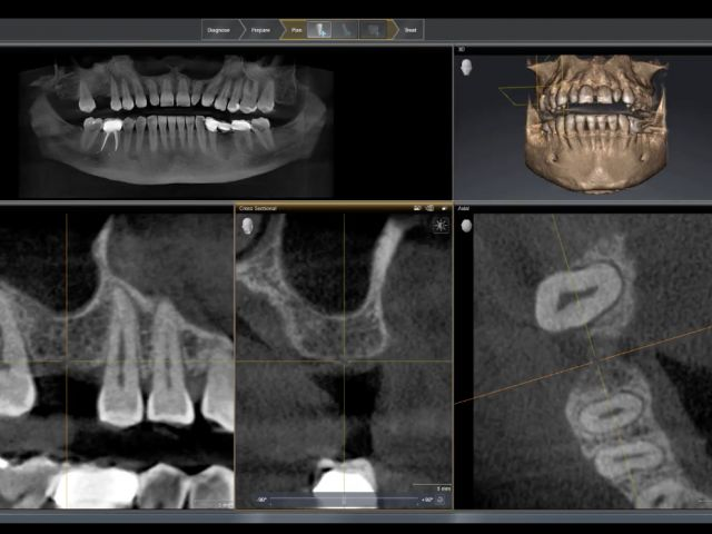 Sinus Lift with a CEREC Guide