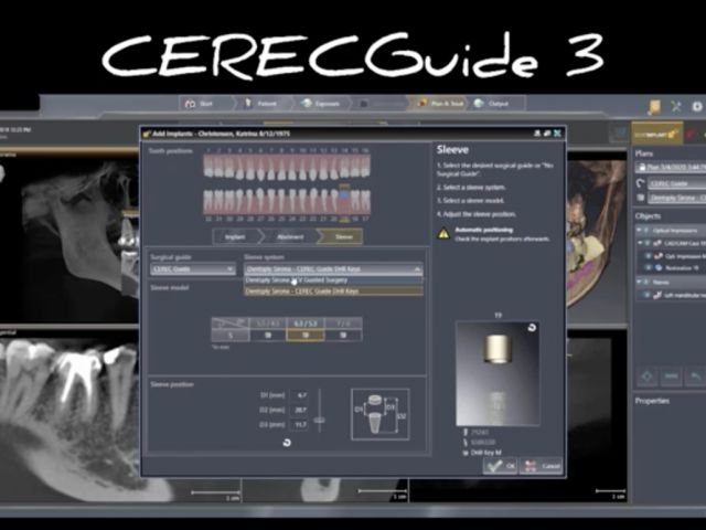 Sleeve Height with CEREC Guide 3