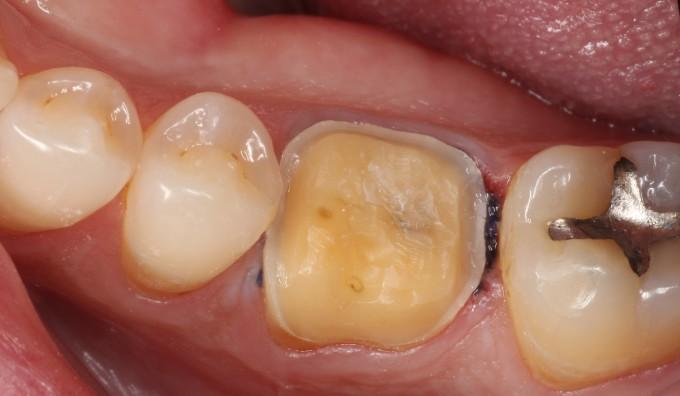 ava guidelines for dental treatment