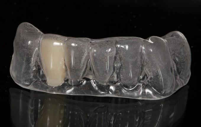 CEREC Doctors - Discussion Boards - 3D printing and Essix